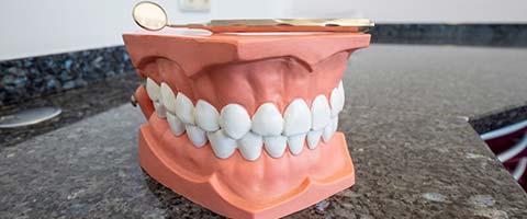 Zahnarzt Zahnmodell Dr Holzapfl